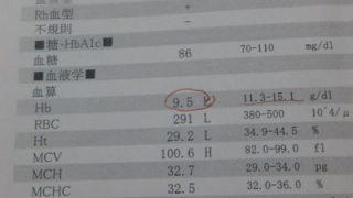 鉄剤で貧血改善!病院で処方してもらう鉄剤はすごい フェロミア50mgで改善 貧血改善方法はやっぱり鉄剤を飲むのが早い