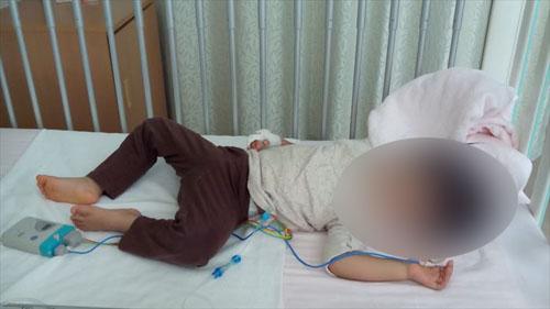 川崎病 入院 画像