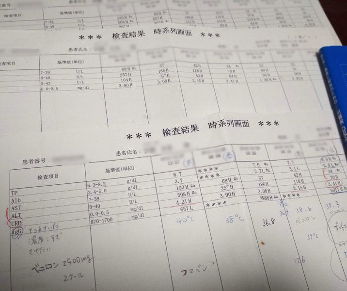 川崎病 検査結果データ
