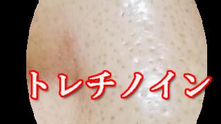 いちご鼻 鼻の黒ずみ トレチノイン ハイドロキノン療法で改善なるか 経過ブログ リアル口コミ