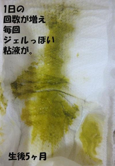 赤ちゃんのうんち ジェルっぽい粘液
